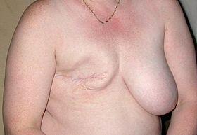 Mastectomy patient
