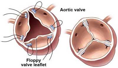 aortic valave repair