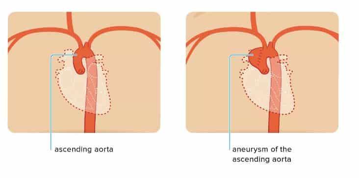 ascending aorta aneurysm