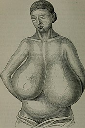Macromastia
