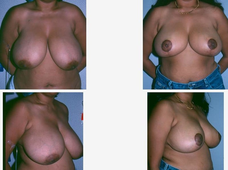 what to expect after breast reduction surgery.