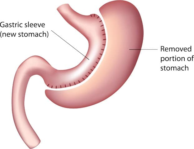 Bariatric Surgery Cost - Gastric Sleeve Surgery