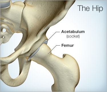 types of hip surgery