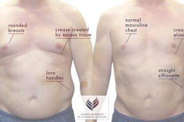 Gynecomastia Surgery | Male Breast Reduction