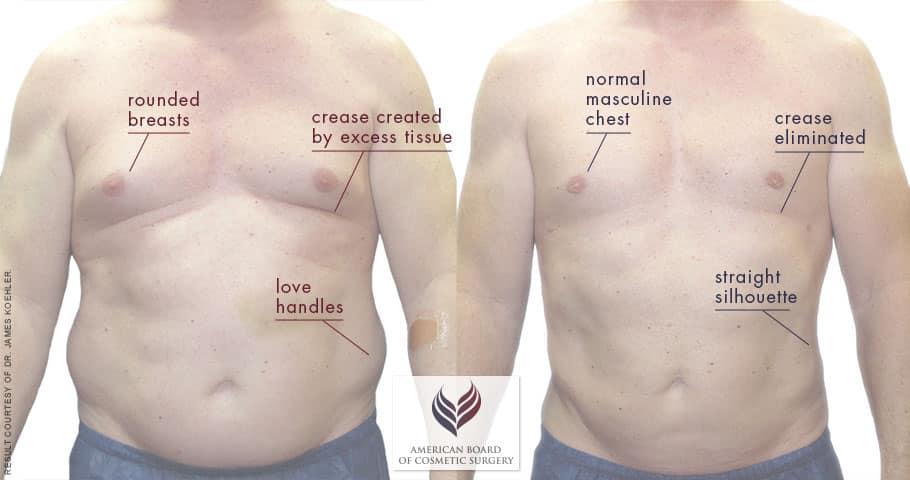 Gynecomastia Surgery   Male Breast Reduction