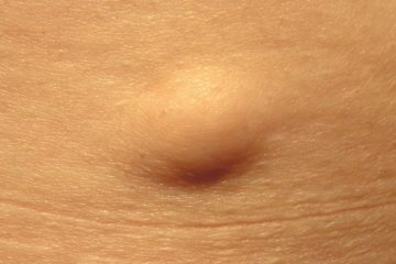 lipoma removal cost
