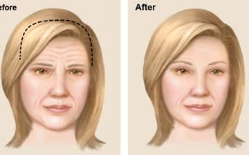 Jaw Reduction Surgery | Jaw Shaving Surgery | Risks | Cost