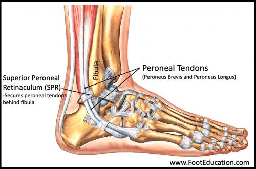 Peroneal Tendon Subluxation Surgery