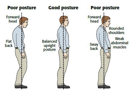 Causes of Postural Defects