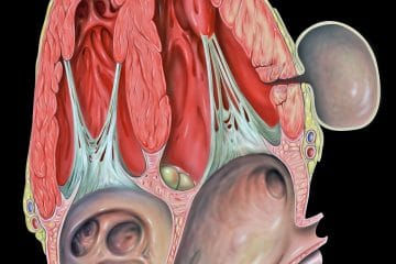 What is Chronic Pancreatitis