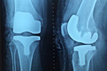 Orthopedic Surgery Types
